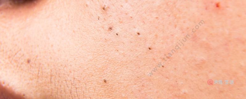 痤疮和粉刺的区别