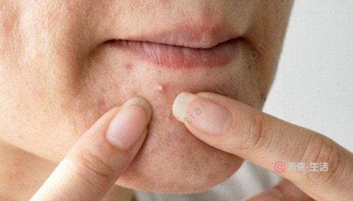 维生素a能淡化痘印吗
